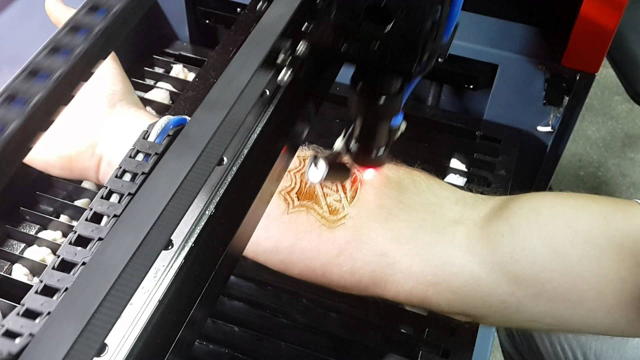 Drunk Russian Guy Tries To Give Himself A Tattoo With A Laser Engraving Machine