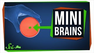 What Growing Mini Brains Has Taught Us, And What