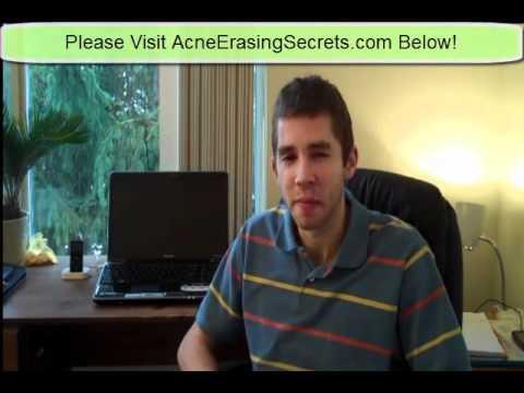 Emotional Stress And Acne Advice