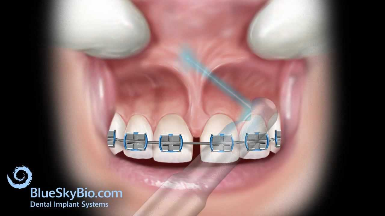 Patient Treatment Videos  Frenectomy Laser
