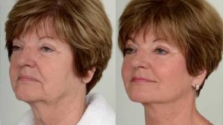 Nova Medical Video Production   Facelift Surgery Before & After Documentary