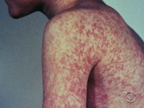 Measles is making a comeback in U.S.
