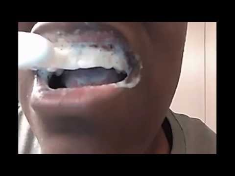 [WARNING] Teeth Whitening Baking Soda and Lemon - Bad Reaction - Before & After | The Mouth Episode