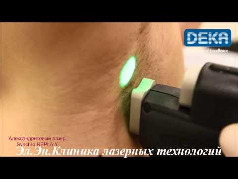 Лазерная эпиляция александритовым лазером Киев видео