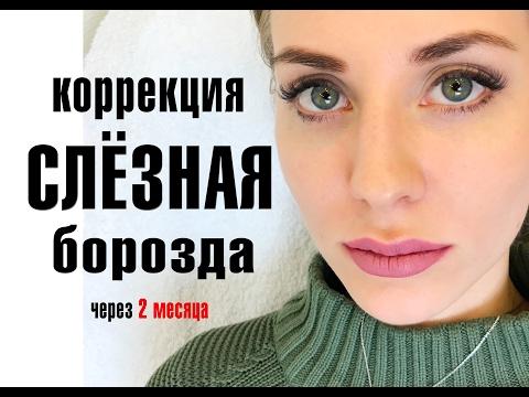 Коррекция слёзной борозды Гиалуроновой Кислотой. Врач косметолог Халима Беляева.