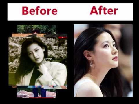 Distorted Korean Plastic Surgery Pics Ver 02