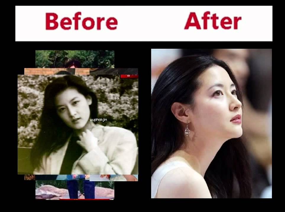 Distorted Korean Plastic Surgery Pics Ver 02 - YouTube
