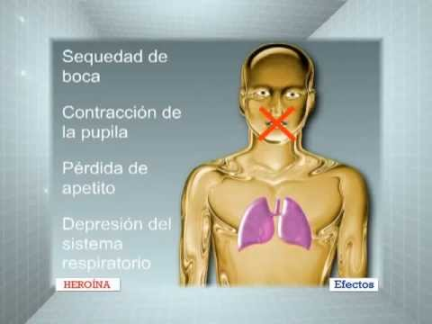 Efectos graves Heroina.mpg