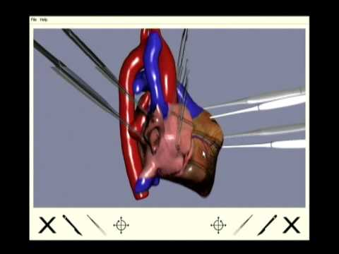 Virtual Open Heart Surgery: Training Complex Surgical Procedures In Congenital Heart Disease. video