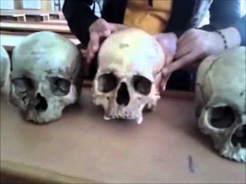 forensic medicine : identification of skull