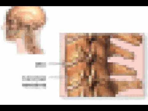 Cervical Spondylosis Definition