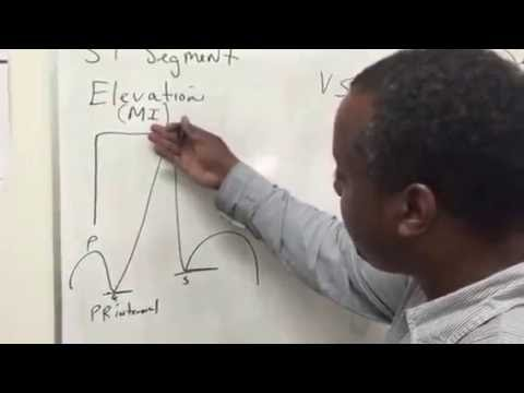 S T Segment Elevation vs S T Segment Depression