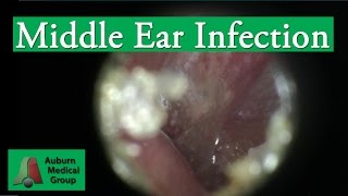 Ear Infection Pain Treatment in an Adult | Auburn Medical Group