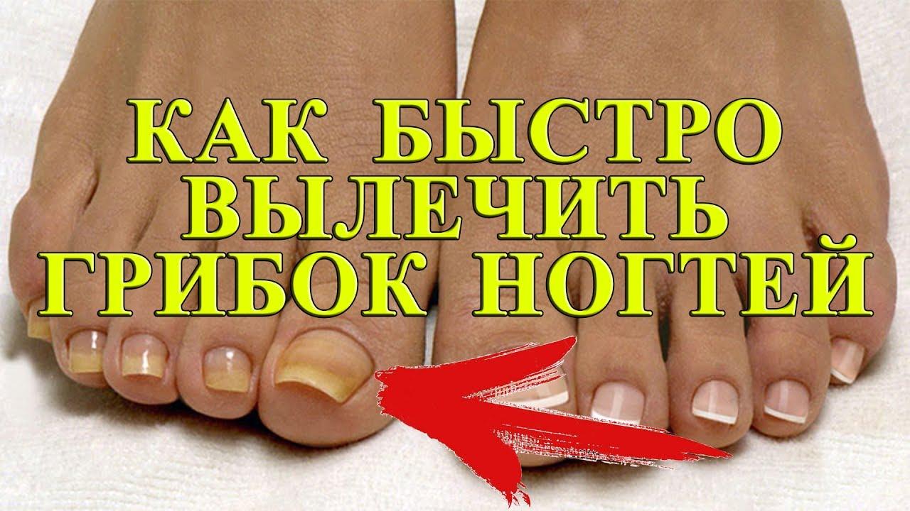 Как вылечить грибок ногтей в домашних условиях  145