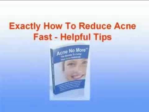 Acne No More Treatment Review Exposed