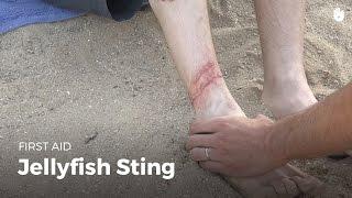 First Aid: Jellyfish Sting