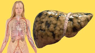 Liver Disease Treatment With These 4 Foods | FattY Liver Treatment At Home 2020