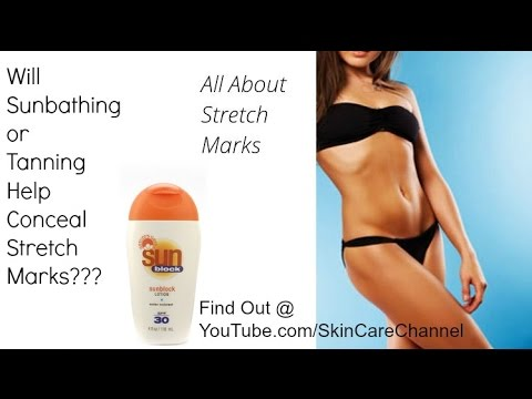 Will Sunbathing or Tanning Help Conceal Stretch Marks