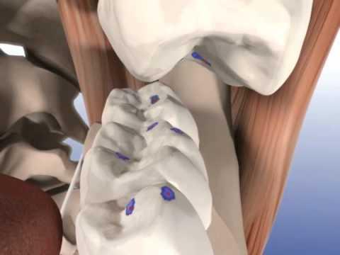 Двухфазный метод проверки окклюзии