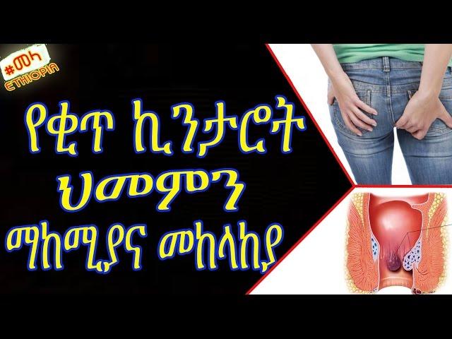 ETHIOPIA - Hemorrhoids Treatment Natural at home - Amharic