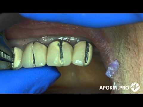 Как снять керамику с зубов