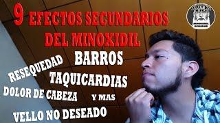 MINOXIDIL : 9 EFECTOS SECUNDARIOS NO DESEADOS Y RECOMENDACIONES