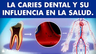 Caries dental y su influencia en la salud ©