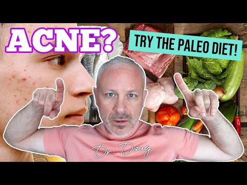 Acne Solutions: Natural Remedy with the Paleo Diet!