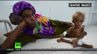 Images of starved toddler show horrors of Yemen's civil war (Graphic)