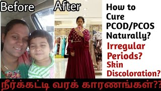 How to Cure PCOD/PCOS Problem Naturally?|Irregular Periods|Skin Discoloration|My PCOD Story