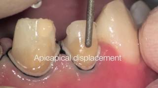 "Копія відео ""Tooth preparation under microscope, root canal treatment. Nazariy Mykhaylyuk"""