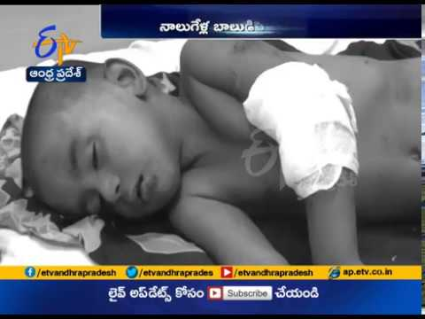Pig Attacks a 4 Year Old Kid | Injures Him Badly | at Nellore District