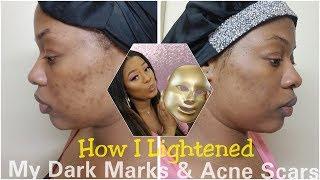 How i Lightened my Dark Marks & Acne Scars + LED Mask update