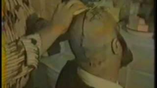 Cirurgia Espírita  em Izidro Guedes