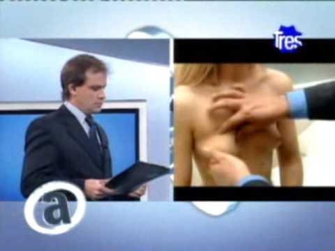 Plan A 2009 - Programa 062 - Cirugías de Senos - Dr Juan Carlos Traverso