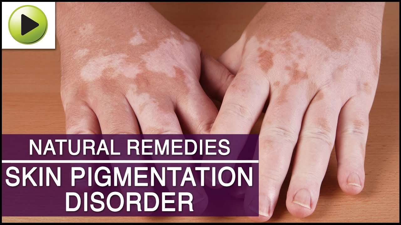 How To Treat Skin Discoloration Naturally