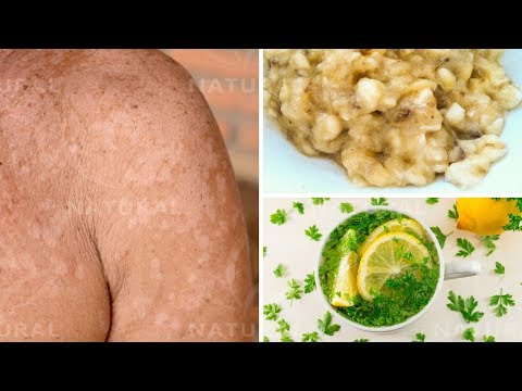 3 Natural Remedies for Treating Tinea Versicolor at Home (Pityriasis Versicolor)