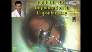 How to perform Primary Posterior Capsulorhexis for Posterior Capsule Thickening or Plaque