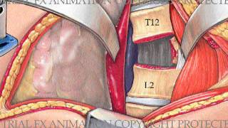 Lumbar Corpectomy and Fusion with Synthes