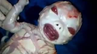 Pregnant women saw Indian serial kiron mala