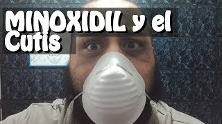 13 months of minoxidil for the beard, minoxidil f*%ed my skin and vellus