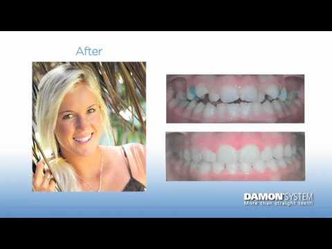 Bethany Hamilton on Damon Braces