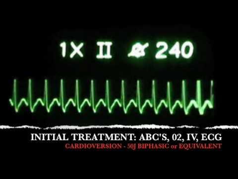 ACLS ECG Recognition SVT- Classes Sacramento