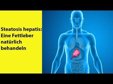 Steatosis hepatis: Eine Fettleber natürlich behandeln | Gesundheit