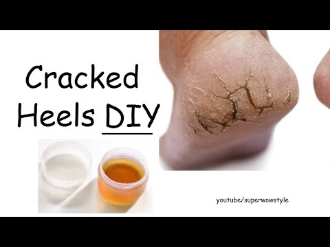 DIY cracked heels remedy   superwowstyle