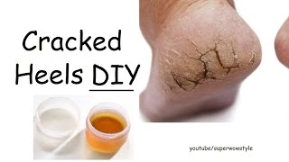 DIY cracked heels remedy | superwowstyle