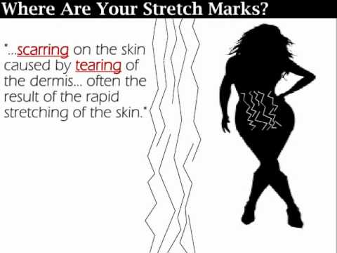 ImpatientDieter Stretch Marks Series Before & After MSM Lotion, Shea Butter, Elasticur, TriLASTIN-SR