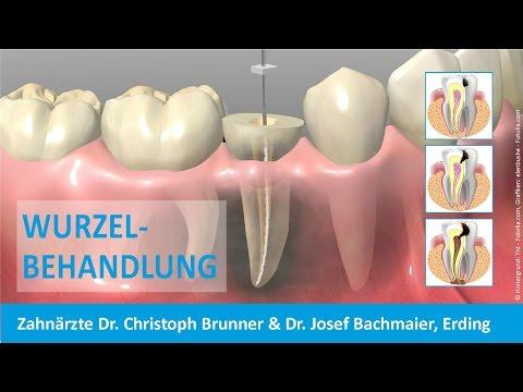 Wurzelbehandlung Zahnarzt Erding - Dr. Christoph Brunner & Dr. Josef Bachmaier