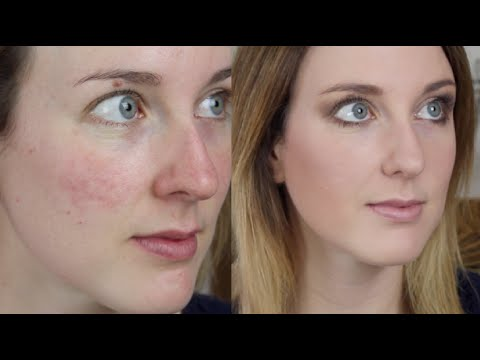 Acne Scarring/ Redness Foundation Routine & Needling Experience