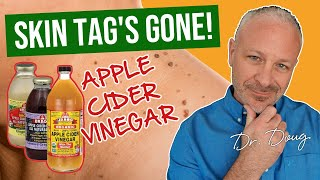 Skin Tag Solution: Apple Cider Vinegar!